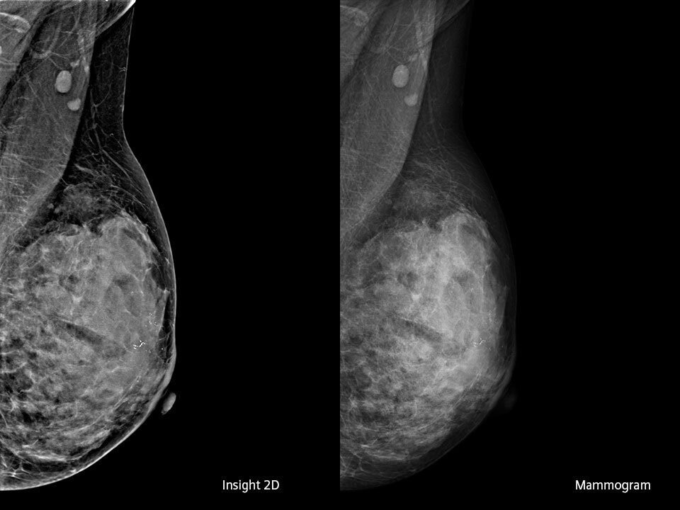 scans showing the difference between current and updated mammogram technology