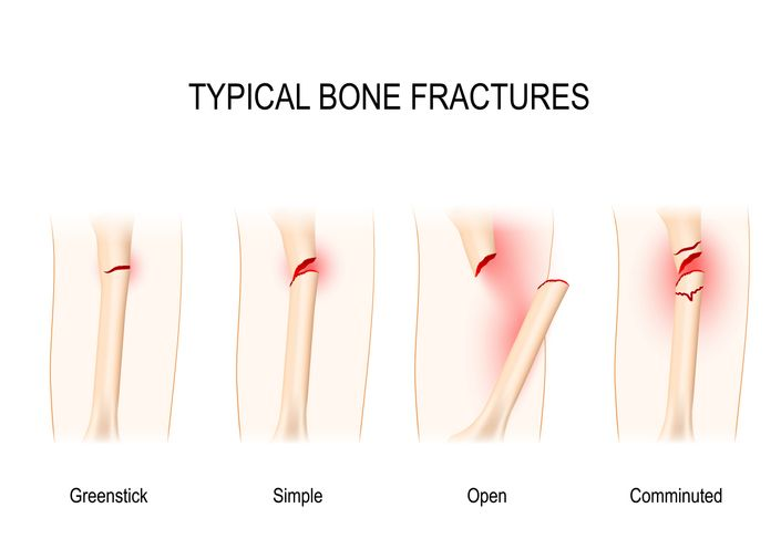 There are many types of fractures that JOI treats.  These are pictures of a few of them.