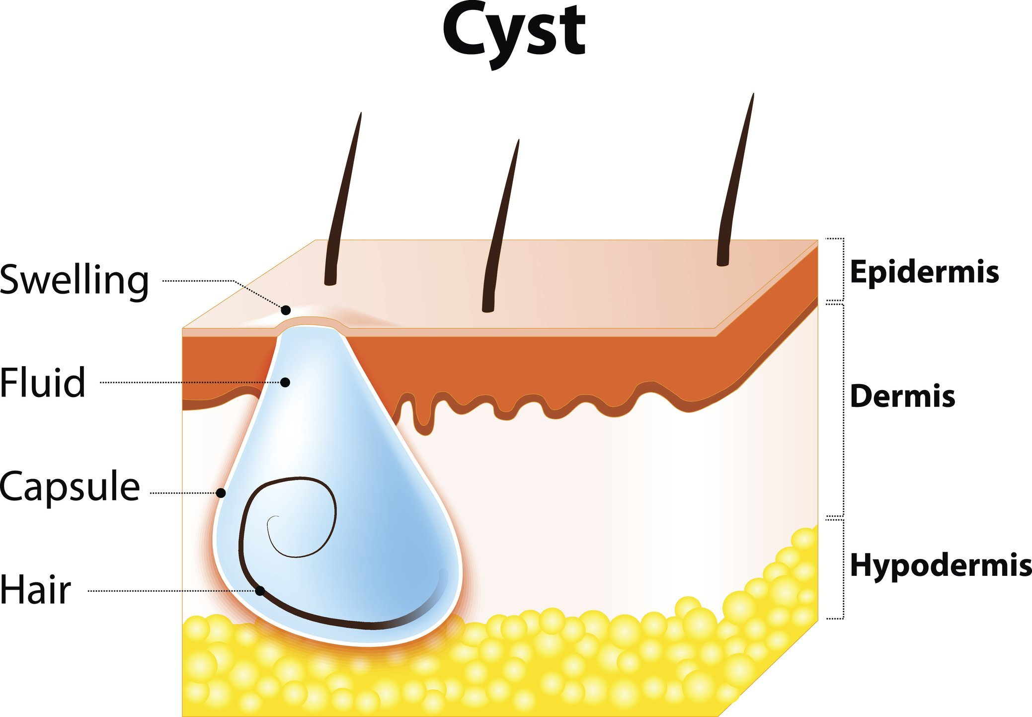 Cysts can form in many places on the body.