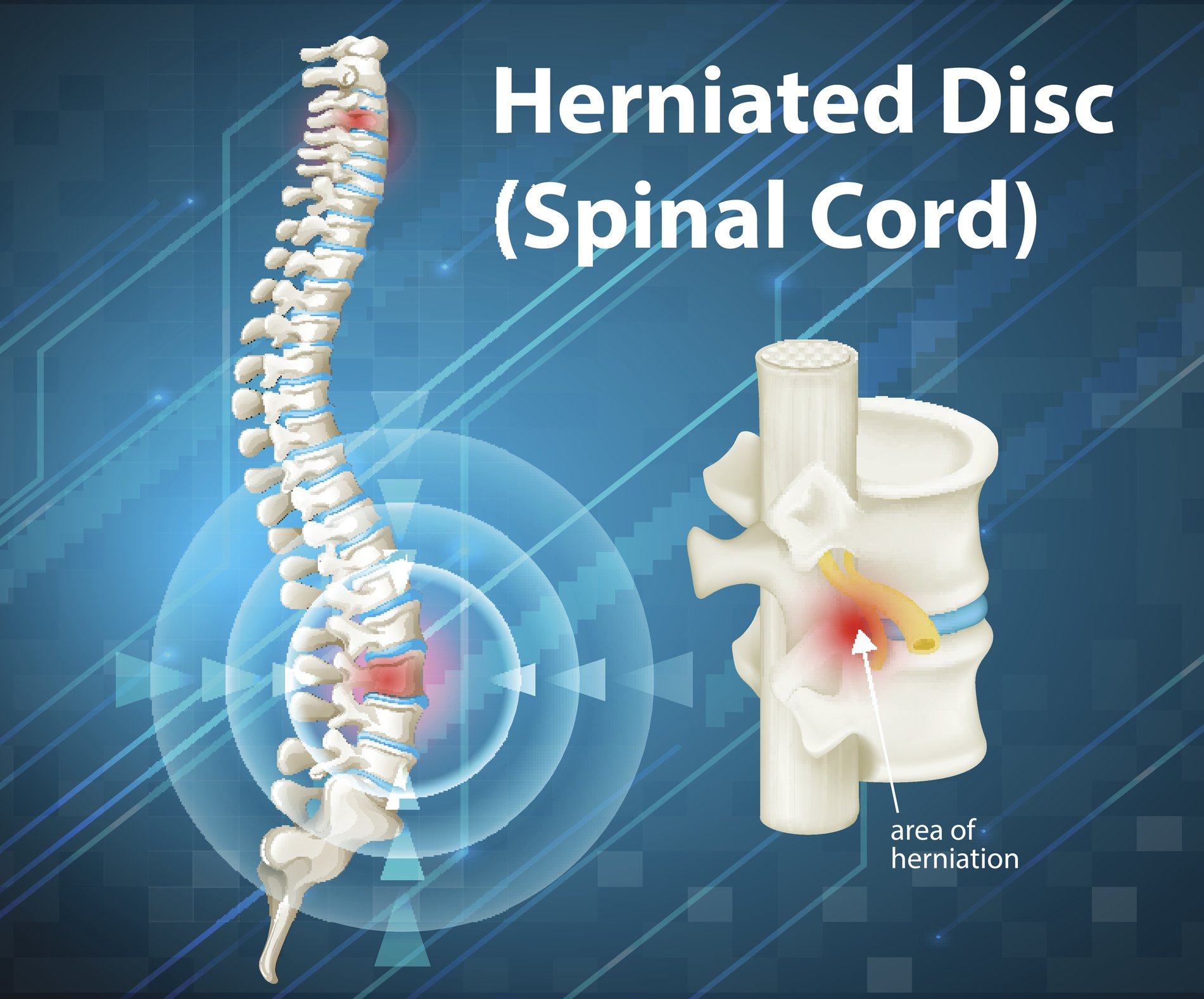 Learn how to fix pinched nerve in lower back. Herniated or pinched nerves are treatable injuries.
