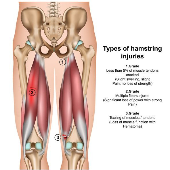 Hamstring strains can happen with quick burst movements and high kicks.