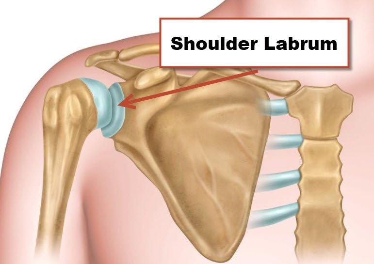 Trevor Lawrence is having a shoulder labrum surgery.  A shoulder labral repair is surgery to re-attach the labral cartilage to the bone of the shoulder socket.