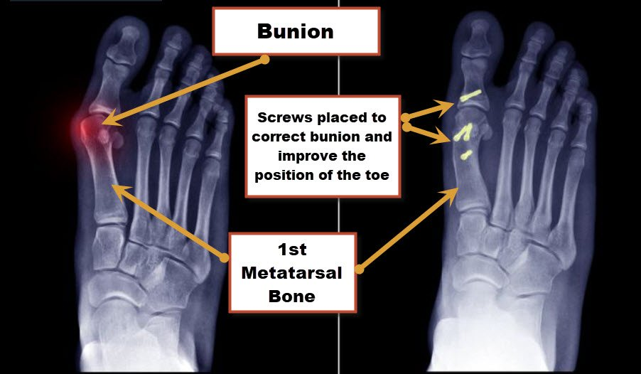 Minimally invasive bunion surgery is an option that allows surgeons to reposition the great toe with small incisions.