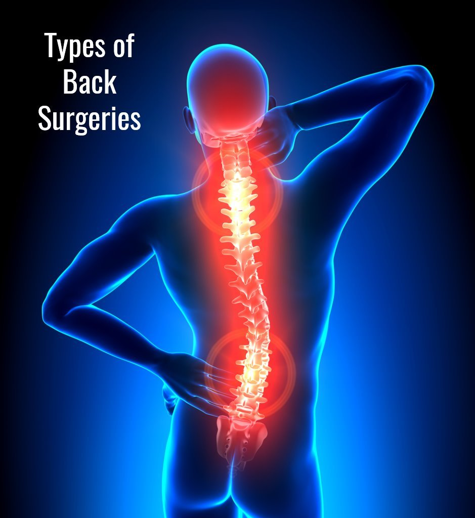 Types of Back Surgeries JOI