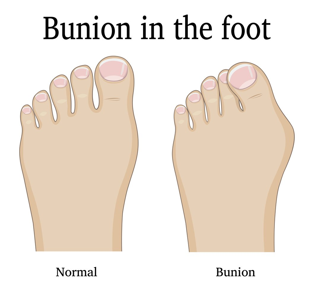 Bunions are bumps on the inside of the foot at the big toe.  But the problem begins at the middle of the foot. Bunion is commonly misspelled as Bunnion and Bonion..