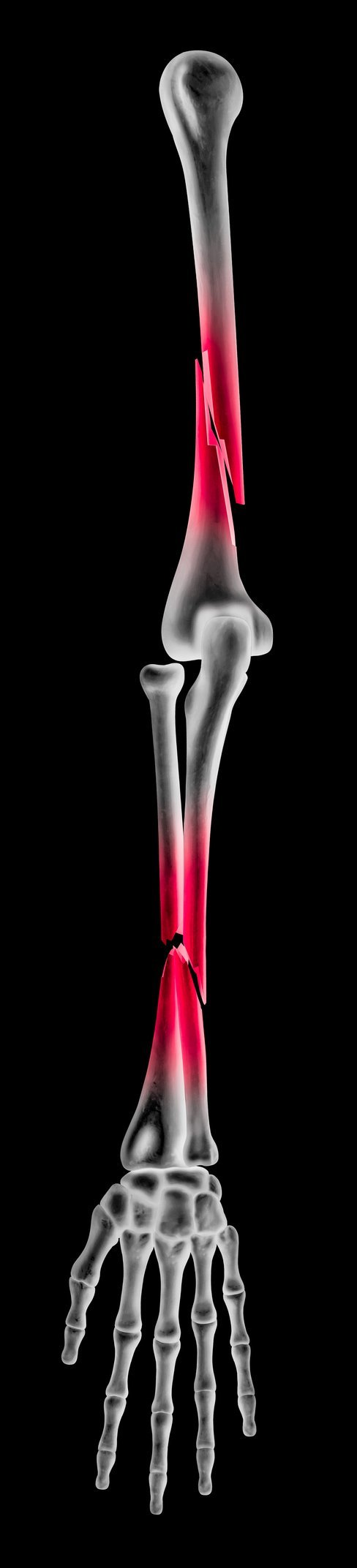 Is Heat Good for a Healing Fracture