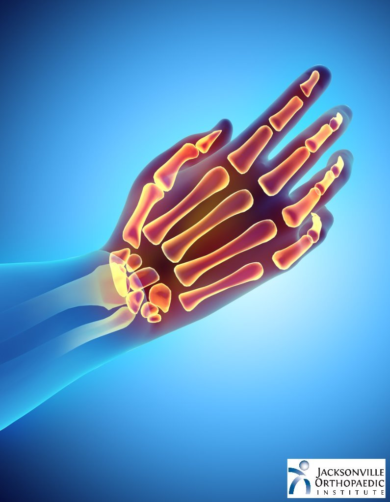 Trapezium and the first metacarpal joint. JOI