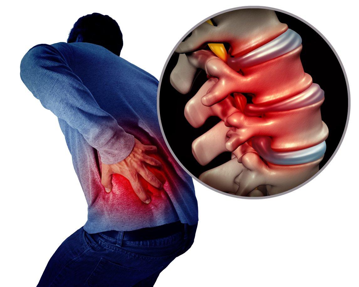 Sciatca, siatica, siatica, however you spell it, it hurts.  The top 3 sciatic nerve stretches can help relieve pain from sciatica.