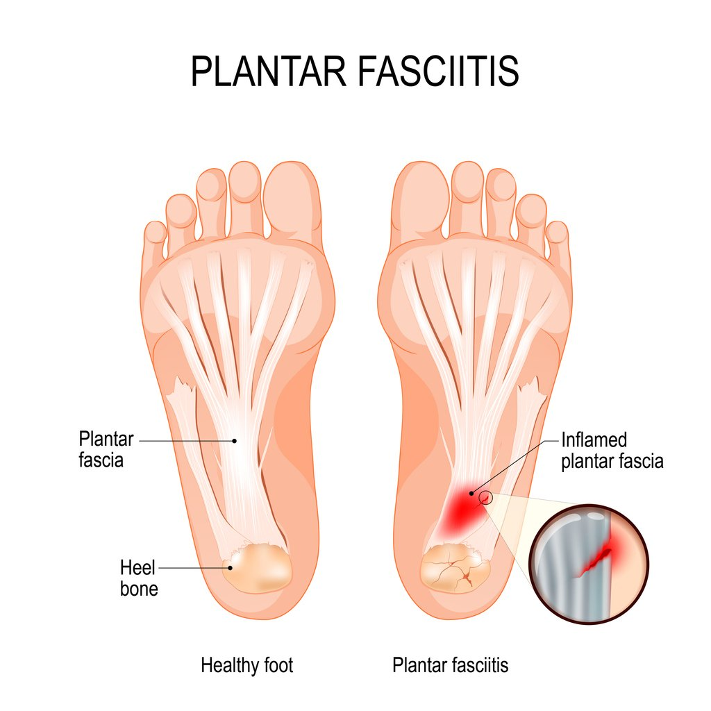 Best Treatment For Plantar Fascia Tear