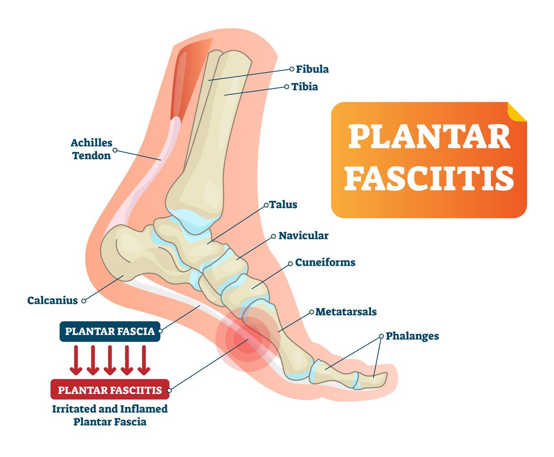 JOI Rehab Preventing Plantar Fasciitis