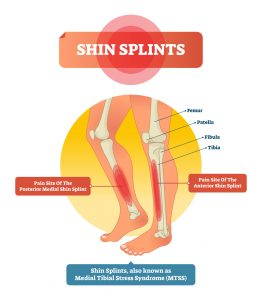 Shin splints can happen with running and impact