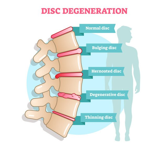Disc degeneration may be a cause of lower back pain.