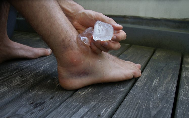 applying ice to outside of ankle after sprain.