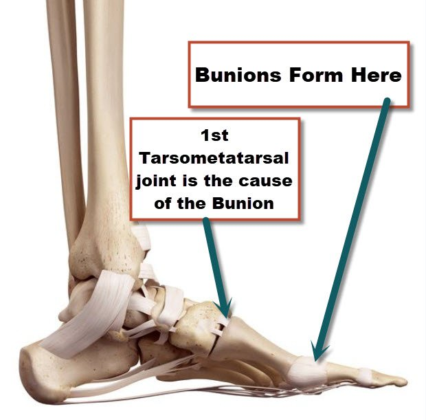 Bunions are caused by instability in the 1st tarsometatarsal joint.