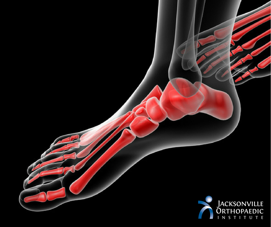 Sesamoiditis: If You Are On Your Feet Often, You Need To Read This.