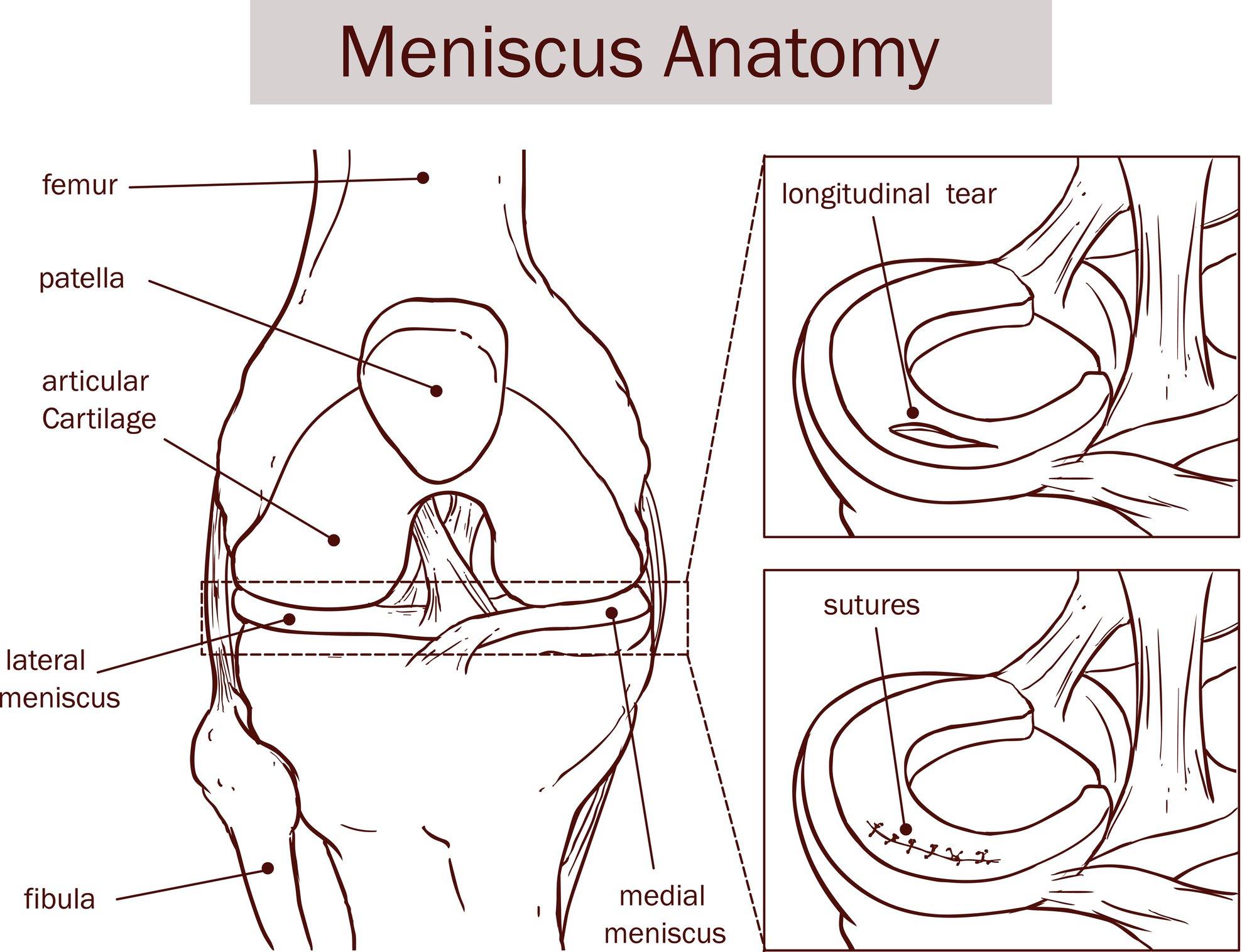 Meniscus Tear Rehab
