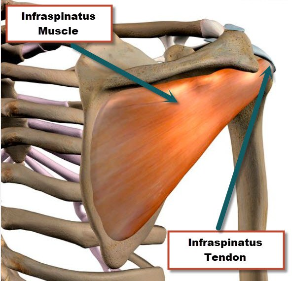The Infraspinatus is one of the rotator cuff muscles that helps to rotate the shoulder outward or externally.