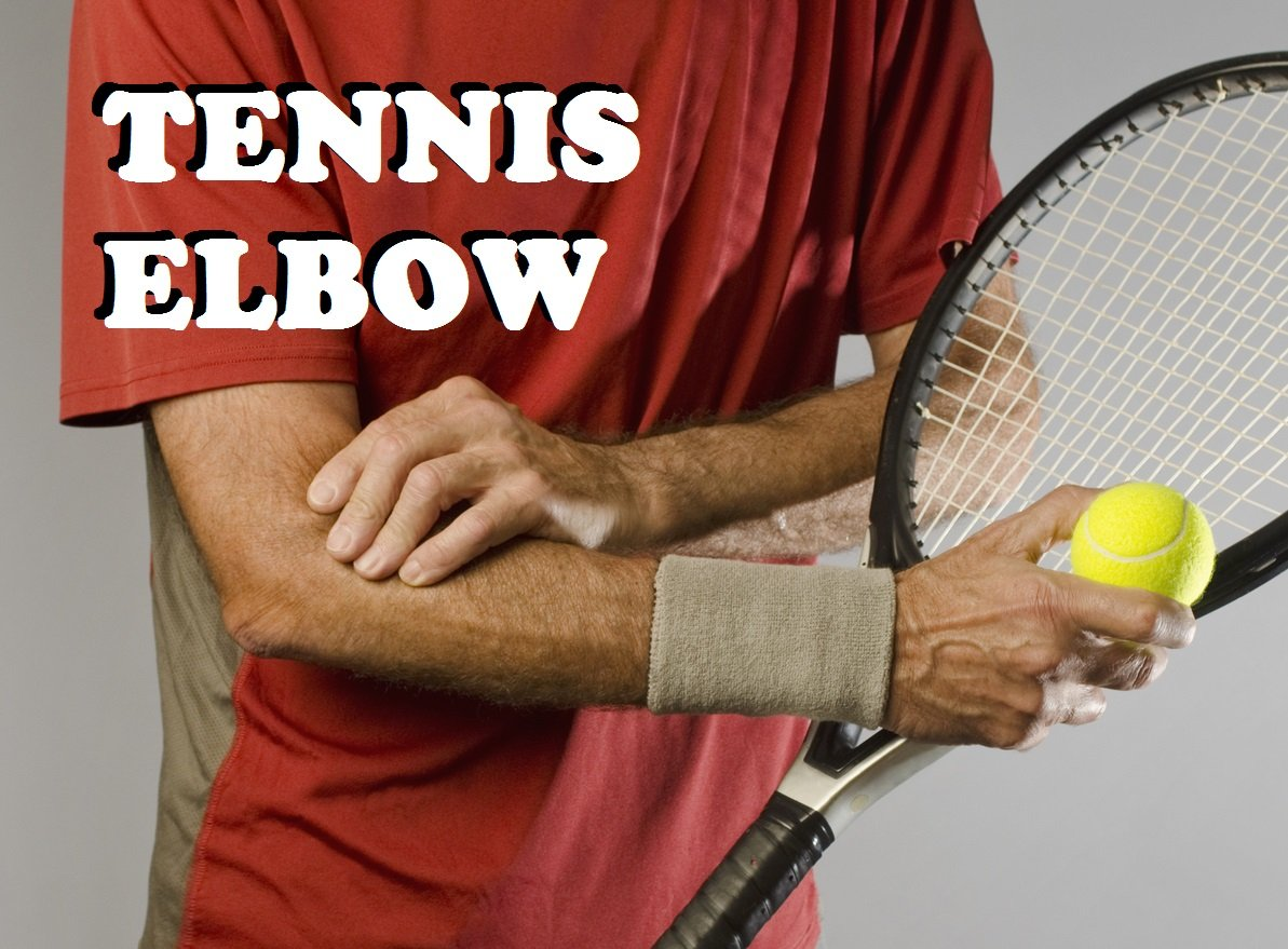 Braces for tennis elbow by JOI