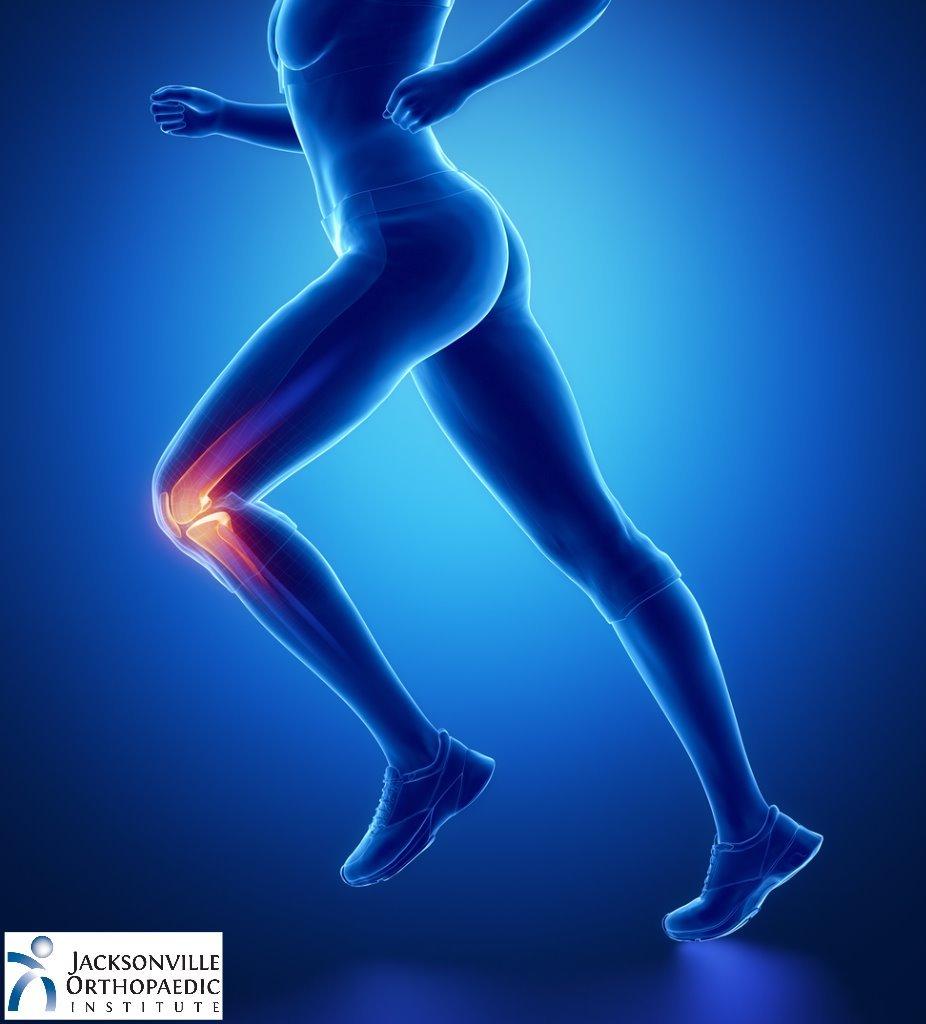Knee Ligament Tear