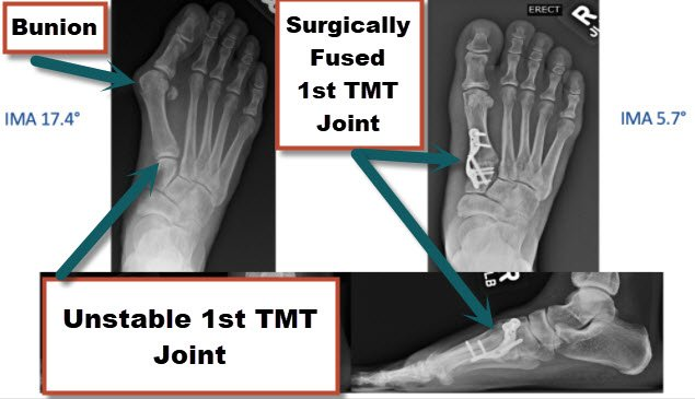 A Lapidus bunionectomy procedure is used to fix a bunion by repositioning the 1st metatarsal bone and fusing if at the 1st TMT jt.