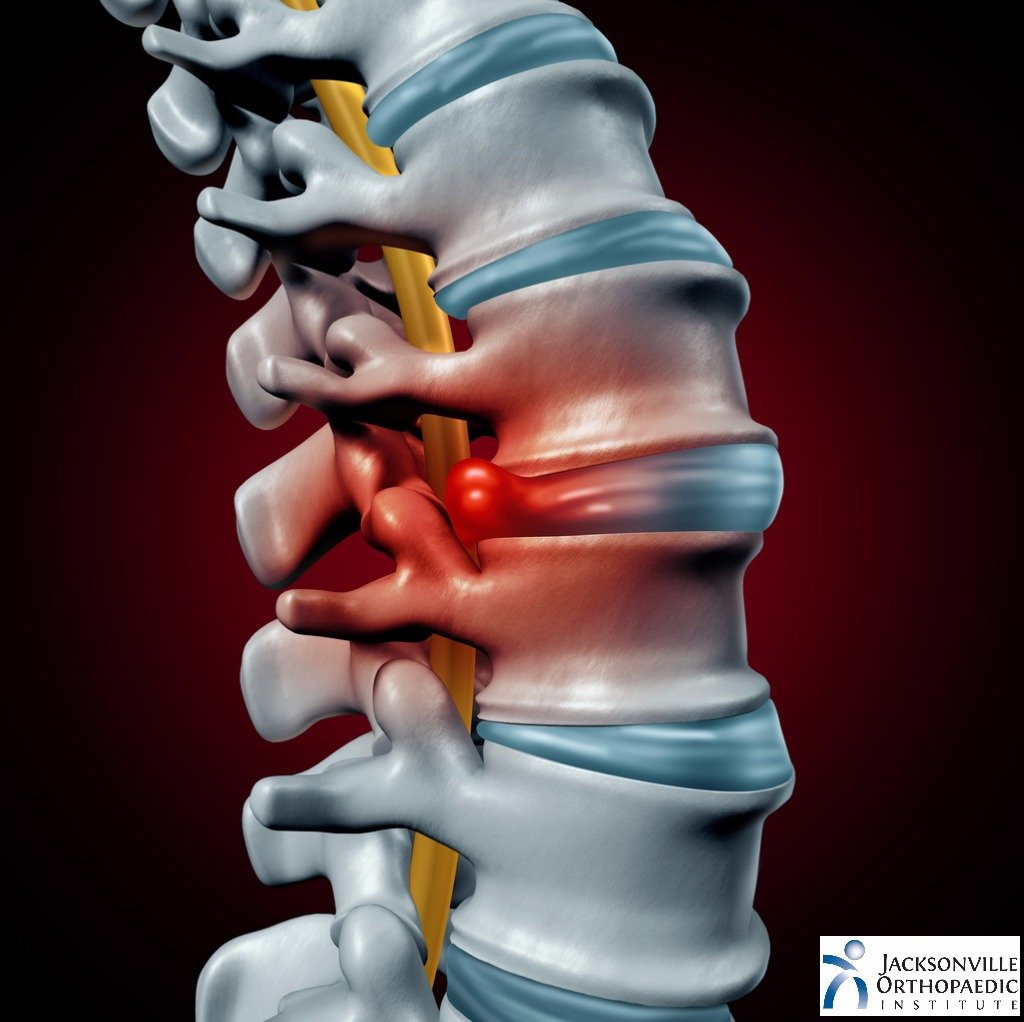 Spinal cord with a herniated disk, JOI